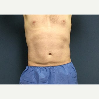 35-44 year old man treated with CoolSculpting after 1925173
