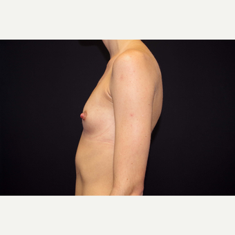 25-34 year old woman treated with Breast Augmentation before 3280852