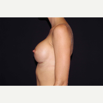 25-34 year old woman treated with Breast Augmentation after 3280852