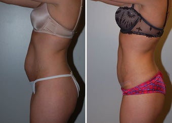 Abdominoplasty (Tummy Tuck) after 330696