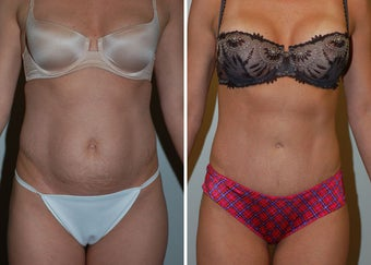 Abdominoplasty (Tummy Tuck) before 330696