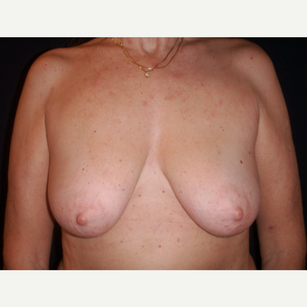 35-44 year old woman treated with Breast Lift before 3194292