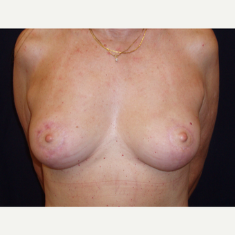35-44 year old woman treated with Breast Lift after 3194292