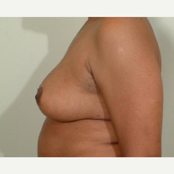 45-54 year old woman treated with Breast Reduction after 3446736
