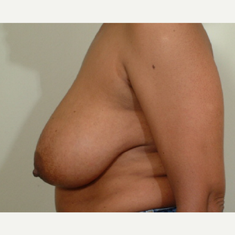 45-54 year old woman treated with Breast Reduction before 3446736