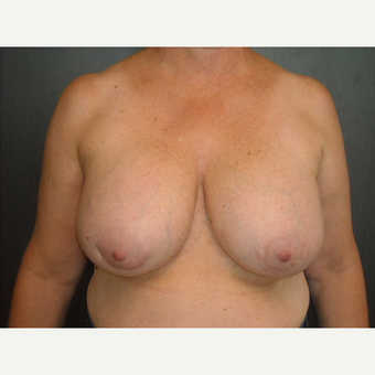 Breast implant removal and lift.