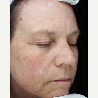55-64 year old woman treated with Skin Rejuvenation before 3407421