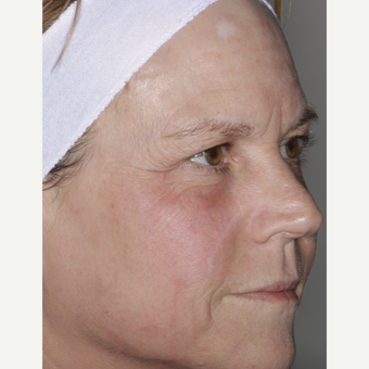 55-64 year old woman treated with Skin Rejuvenation after 3407421