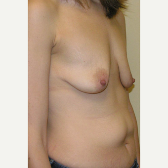25-34 year old woman treated with Mommy Makeover before 3434760