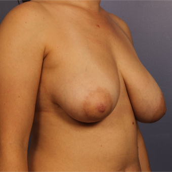 Breast Lift before 3671681