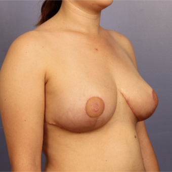 Breast Lift after 3671681