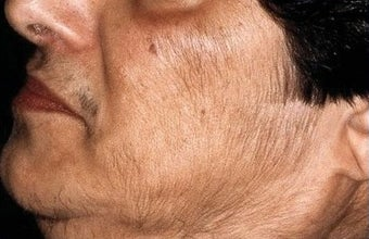 Laser Hair Removal on Female Patient's Face