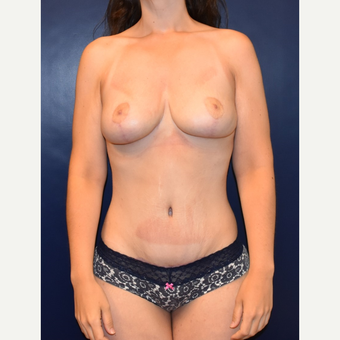 18-24 year old woman treated with Breast Lift after 3076844