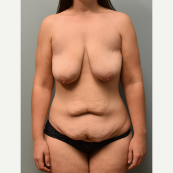 18-24 year old woman treated with Breast Lift before 3076844