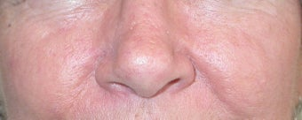 53 year old Female with Facial Veins / Telangiectasia after 694731