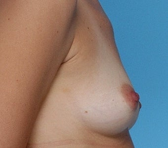 Breast augmentation with Silicone Implants before 67281