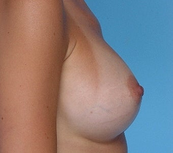 Breast augmentation with Silicone Implants after 67281