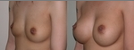Breast Augmentation before 432943