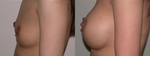 Breast Augmentation after 432943