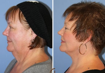 Neck lift under local anesthesia and twilight sedation after 252451