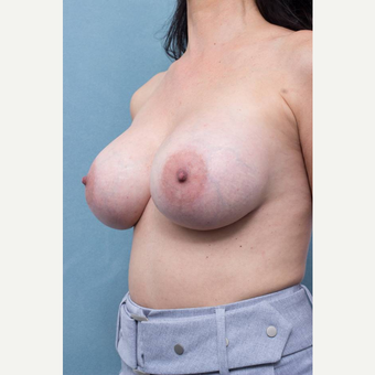 35-44 year old woman treated with Breast Implant Revision after 3289227