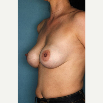35-44 year old woman treated with Breast Implant Revision before 3289227