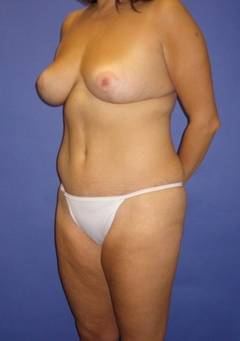 34 year old seeks tighter tummy and perky breasts