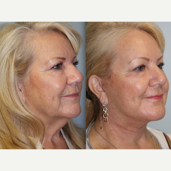 66 year old woman treated with Neck Lift