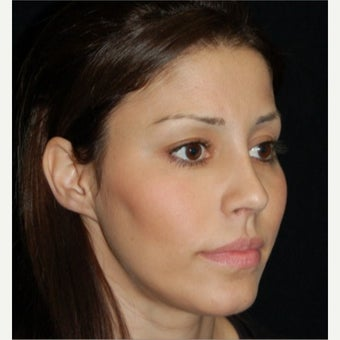 Neck Liposuction after 1772806