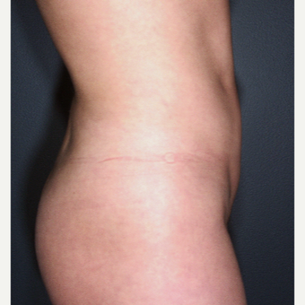25-34 year old woman treated with Liposuction - multiple areas were treated after 3664470