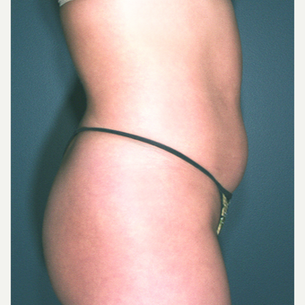 25-34 year old woman treated with Liposuction - multiple areas were treated before 3664470