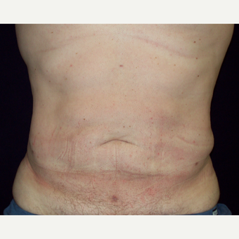 35-44 year old Male treated with Liposuction to Abdomen and Flanks after 3141995