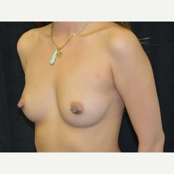 35-44 year old woman treated with Breast Implants before 3423904