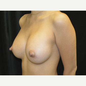 35-44 year old woman treated with Breast Implants after 3423904