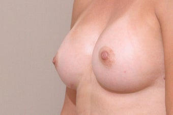 Nipple reduction with no scar technique