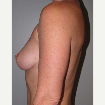 35-44 year old woman treated with Breast Augmentation before 3147677