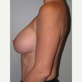 35-44 year old woman treated with Breast Augmentation after 3147677