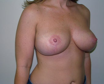 Breast lift after 88868