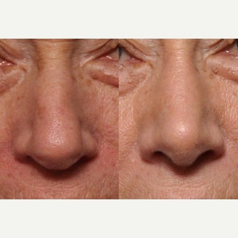 Open Rhinoplasty In Mature Patient To Improve Nasal Breathing and Nasal Aesthetics before 2585622