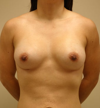 25-34 year old woman treated with Breast Augmentation after 3813775