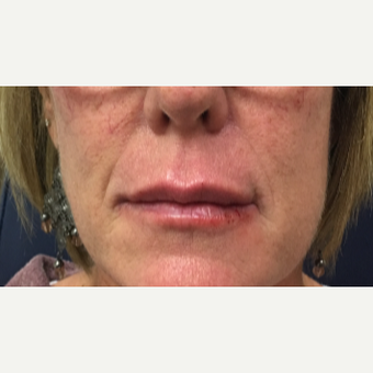 53 year old woman treated with Restylane-L injected into the upper and lower lips after 3656746