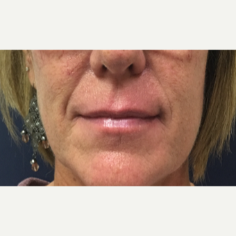 53 year old woman treated with Restylane-L injected into the upper and lower lips before 3656746