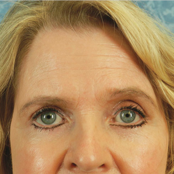 Eyelid Surgery after 3126876