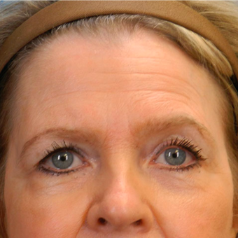 Eyelid Surgery before 3126876