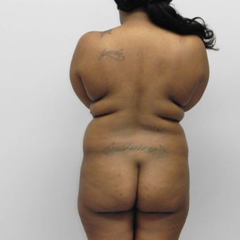 25-34 year old woman treated with Vaser Liposuction before 3382430