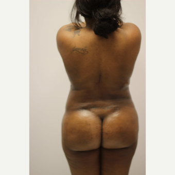 25-34 year old woman treated with Vaser Liposuction after 3382430