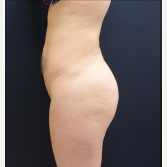 25-34 year old woman treated with Brazilian Butt Lift Revision 712cc Round Silicone Implants before 3259492