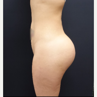25-34 year old woman treated with Brazilian Butt Lift Revision 712cc Round Silicone Implants after 3259492