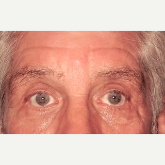 Eyelid Surgery (Blepharoplasty) after 3831623