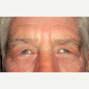 Eyelid Surgery (Blepharoplasty) before 3831623